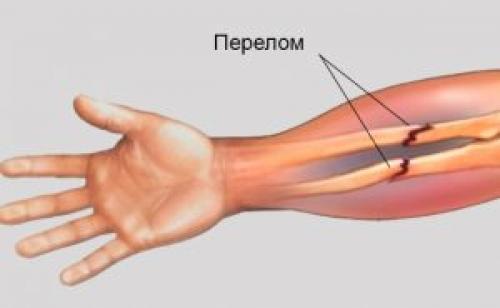 Лечение парафином суставы противопоказания. Полезные свойства парафина