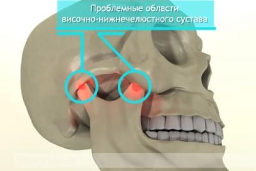Височно нижнечелюстной сустав лечение. Основные причины появления боли в височно-нижнечелюстном суставе
