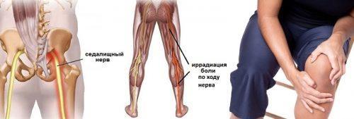 Защемление нерва коленного. Защемление нерва в коленном суставе лечение, симптомы