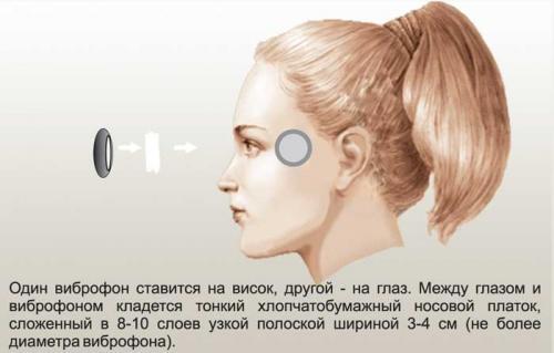 Витафон инструкция по применению в картинках по точкам. Инструкция применения Витафона в картинках – схемы точек 07