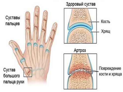 Лечение артроза кистей рук народными средствами. Причины и симптомы артроза кистей