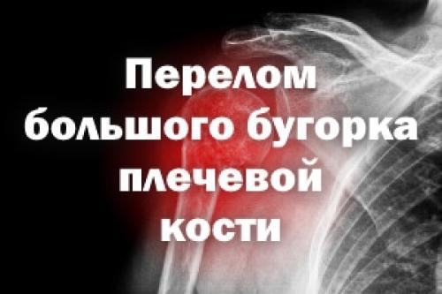 Реабилитация после перелома большого бугорка плечевой кости. Перелом большого бугорка плечевой кости
