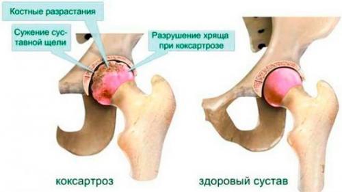 Дисплазия тазобедренного сустава последствия. Дисплазия тазобедренного сустава у взрослых