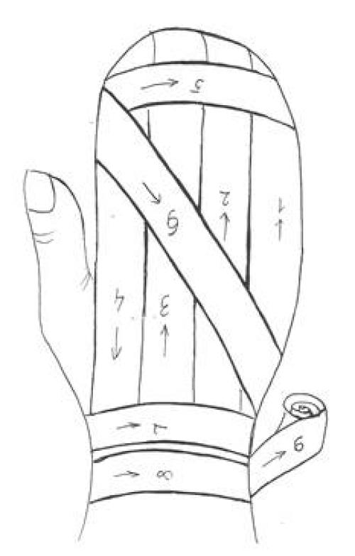 Повязка варежка на кисть. Алгоритм наложения повязки «варежка» на все пальцы кисти.