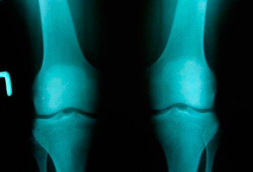 Дают ли инвалидность при гонартрозе 3 степени коленного сустава. Степени гонартроза