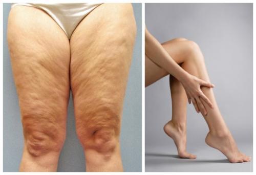 Упражнения для сушки ног для девушек: комплексы и рекомендации