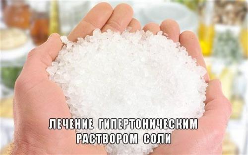 Гипертонический раствор поваренной соли лечебные свойства