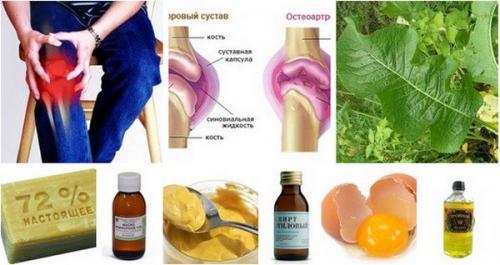 Мануальная терапия при остеохондрозе и головных болях