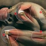 Как снять различные виды боли с помощью несложных упражнений.