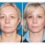 Уроки красоты.  Как подтянуть веки и кожу вокруг глаз без операций?