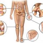 Лечение артрита народными методами ( внутренние и наружные.