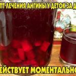 Рецепт лечения ангины.